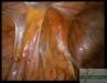 adhesions-img026